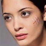 Ефективний крем від рубців і шрамів