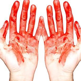 До чого сниться кров на руках