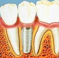 Протезування зубів за допомогою знімних і незнімних протезів