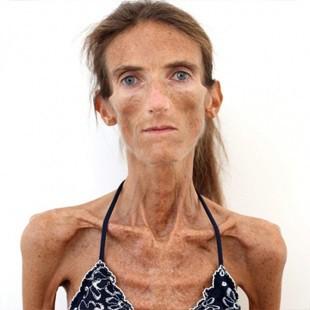 Сама худа жінка в мире