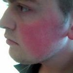 Чи варто лікувати почервоніння на щоках у дорослої людини
